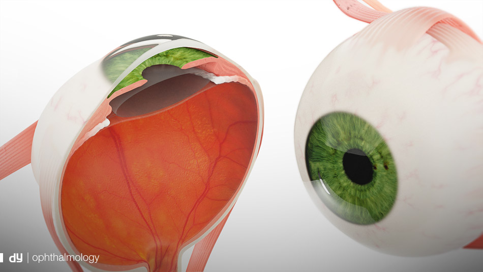 ophthalmology visualisation